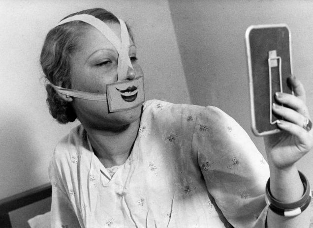 """Smile Club efforts were published in a Dutch illustrated magazine Het Leven, in 1937. The whole thing looks terrifying — especially the strange medical tape that people used to create their smiles.The Creepy Story of How Budapest Became a """"City of Smiles"""" in the 1930s"""