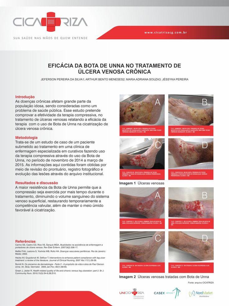 Banner EFICÁCIA DA BOTA DE UNNA NO TRATAMENTO DE ÚLCERA VENOSA CRÔNICA