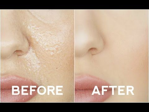 Best Foundation for Oily Skin | Makeup Tutorials - Makeup Tutorials