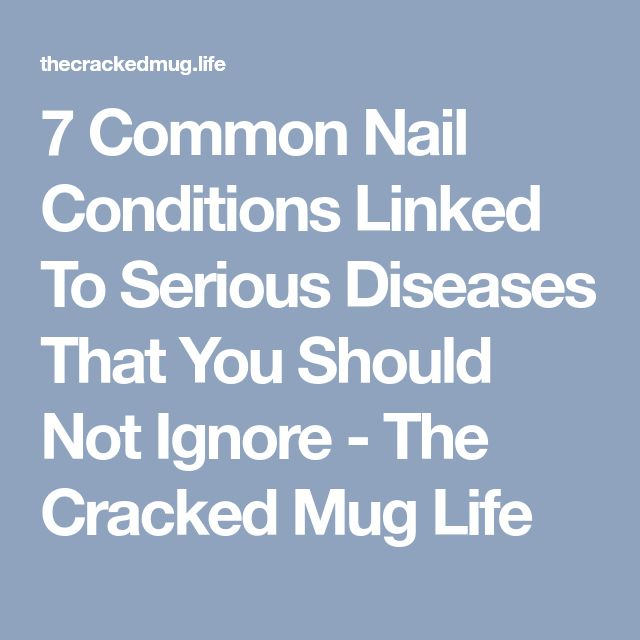 7 Common Nail Conditions Linked To Serious Diseases That You Should Not Ignore - The Cracked Mug Life