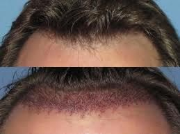 if you want hair transplant and If you have any type of problem that you can meet us.