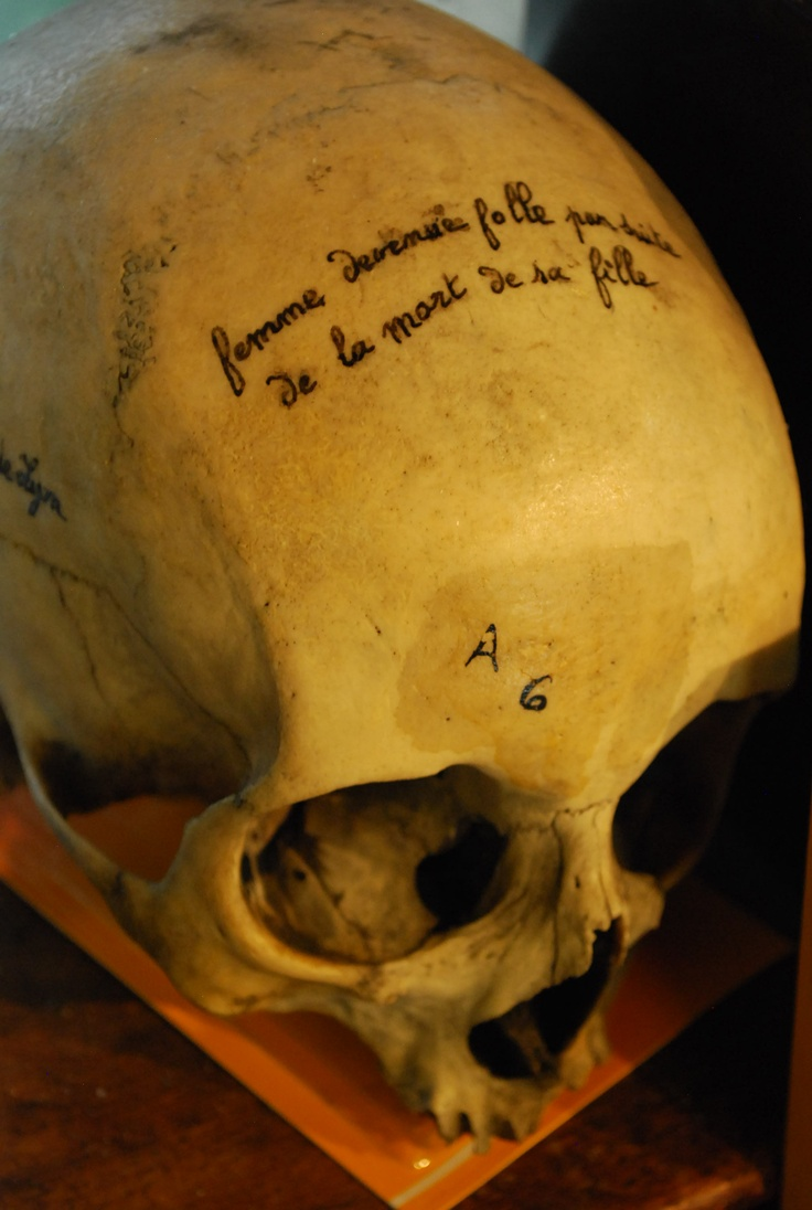 """Musée Testut Latarjet, Lyon FR - On this skull is written """"woman gone crazy after her daughter's death""""Written Woman, Musée Testut, French Woman, Lyon Fr, Testut Latarjet, Daughters Death"""