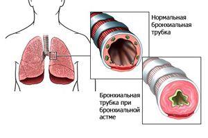 Бронхиальная астма у взрослых – первые признаки и симптомы, причины, лечение и диета при бронхиальной астме