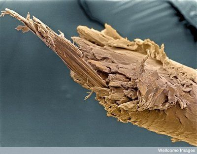 Highly magnified split end of a human hair.