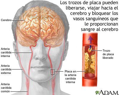 Aterosclerosis de la arteria carótida interna