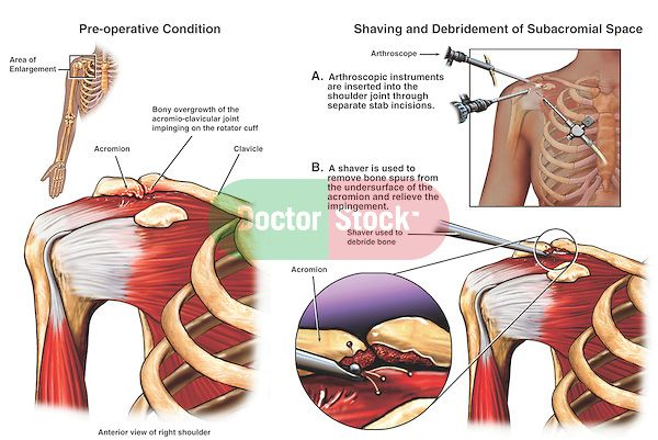 Shoulder Impingement Surgery | Shoulder Impingement Syndrome with Arthroscopic Surgery.