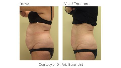 Lose fat without exercise Ultrashape Before After Photos: Belly $2000 treatments