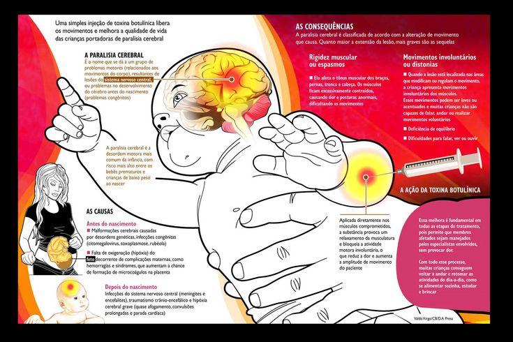 Há diversas técnicas fisioterapêuticas para reabilitação de pacientes com Encefalopatia Crônica não Progressiva da Infância (ECNPI), mais conhecida como Paralisia Cerebral (PC).E estas técnicas devem estar focadas em estimular o potencial de cada criança, com o objetivo de permitir a maior independência possível, buscando também odesenvolvimento das habilidades motoras, dos cuidados pessoais, do brincar e…