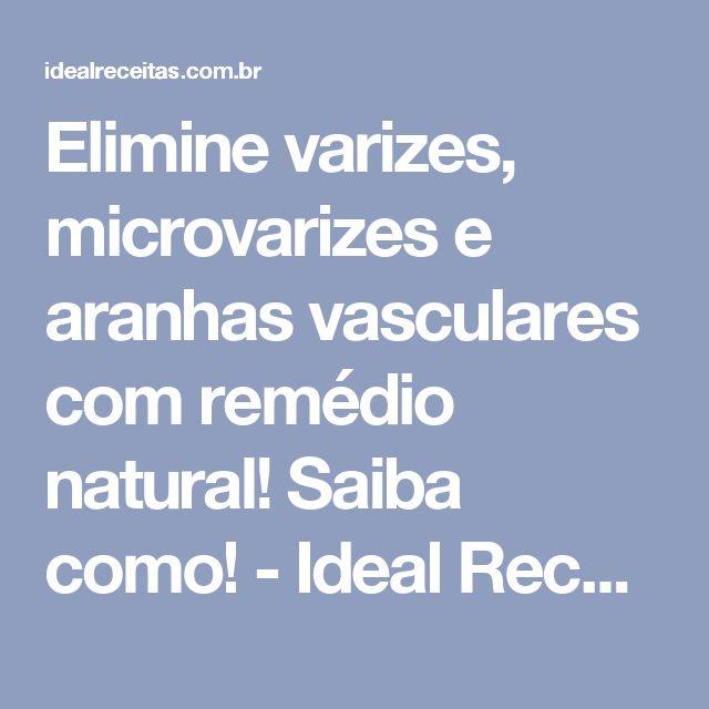 Elimine varizes, microvarizes e aranhas vasculares com remédio natural! Saiba como! - Ideal Receitas