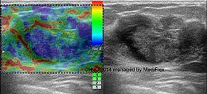 Case 003, Fibroadenoma with Degeneration, image 2, elastography