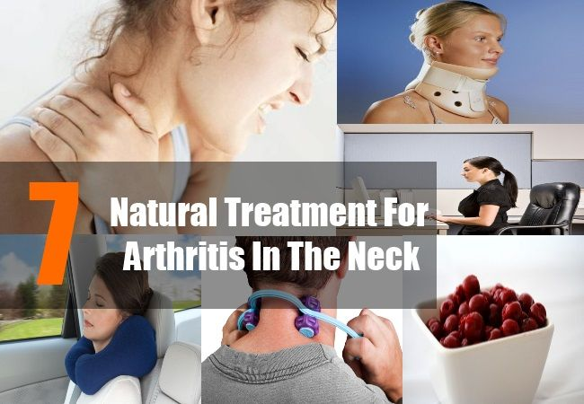 Neck arthritis also known as cervical spondylosis results from irregular growth (nodes or osteophytes) of the bones in the neck and the mineral deposits between ...