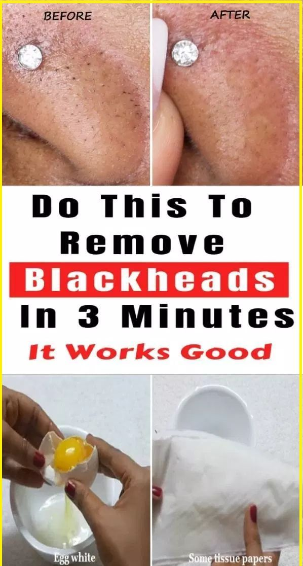 How to Remove Blackheads from Nose in no Time – #b…