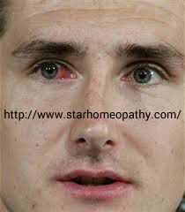 Homeopathy treatment for Conjunctivitis : #homeopathy has proven best #treatment for reducing the infections in eye, reducing the #inflammation and #pain and discomfort felt. Free consultation available, To book appointment visit us @ http://www.starhomeopathy.com/conjunctivitis.php