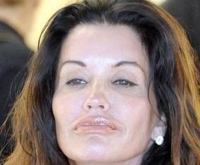 Janice Dickinson's multiple plastic surgery procedures!