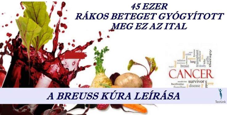 #breuss #céklalé #zöldségkúra Dr. Rudolf Breuss osztrák természetgyógyász kísérletezte ki a zöldséglevekből azt az arányt, amely a legtöbb gyógyíthatatlannak vélt betegségnél is tartós eredményt, teljes gyógyulást hoz, ha azt helyesen alkalmazzák. http://testunk.e-goes.com/dieta/lebojt-kura/breuss-kura/
