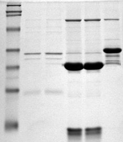 An example western blot experimental result.The black bands on the photographic film represent antibody detection of the protein(s) of interest.Figure Credit: Magnus Manske