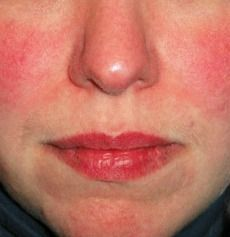 """Natural Remedy for Rosacea That Gives Stunning Results! -- Discover a little known (but extremely potent) natural remedy for rosacea, along with other cutting-edge rosacea treatments in this """"must read"""" article..."""