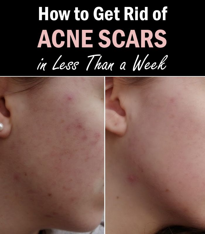 Acne is a troublesome condition to have, and it does bring in quite a lot of problems, to say the least, one of them being the fact that even after it's treated, acne can leave scars which are visually unpleasant. There are ways to remove this thankfully, and we are going to show them in …
