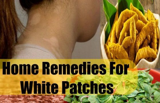 How to get rid of white spots on skin with home remedies? A person may be really good looking, but the white spots can actually play spoil sport. Can ...