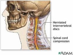 Cervical Herniated Disc Information