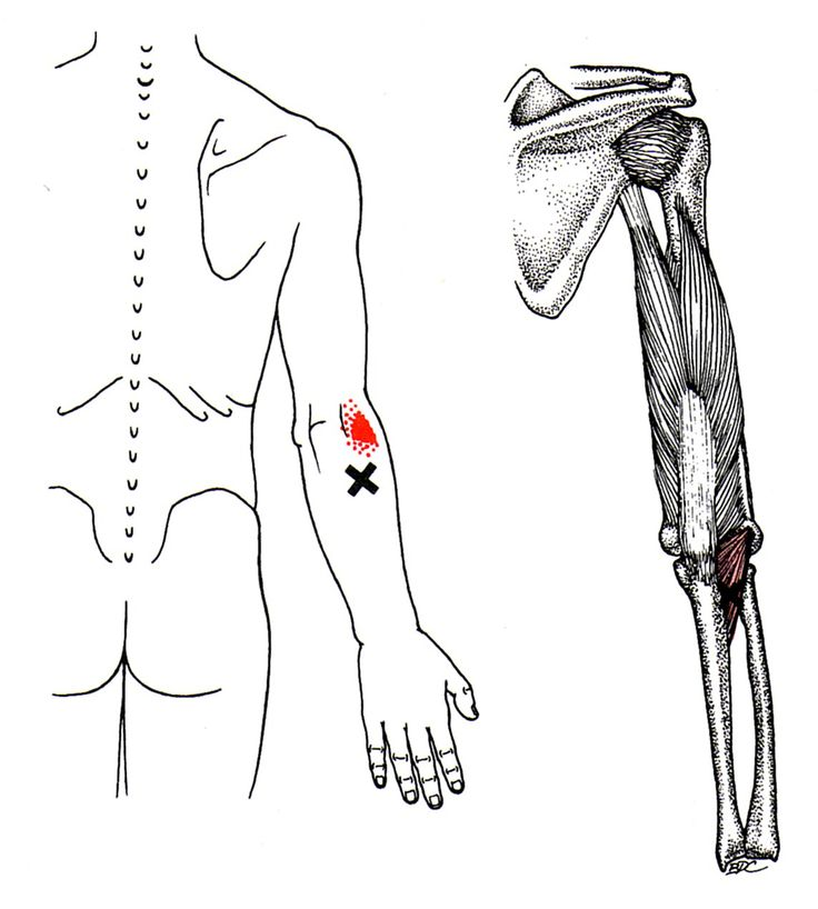 17 best images about referred pain on pinterest