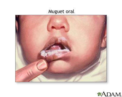 Las úlceras bucales son úlceras o lesiones abiertas en la boca. Ver también: aftas. Úlceras orales; Estomatitis ulcerativa; Úlcera en la boca La...