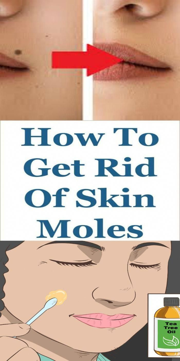 How To Get Rid Of A Mole On Your Chest