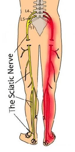 sciatica exercises blogger found a sciatica cure that doesnt involve exercises