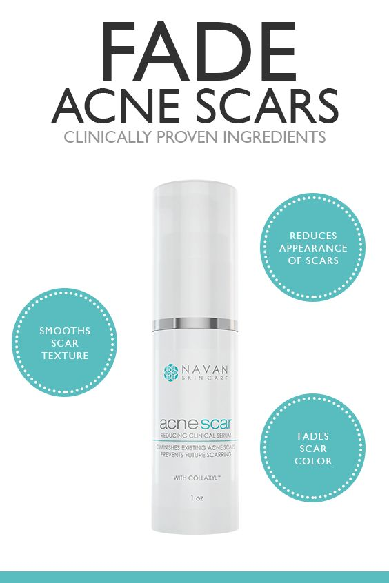 Reduce the Appearance, Color, and Texture of Acne Scars with this Acne Scar Reducing Clinical Serum. Utilizing only the highest quality, ingredients, our unique formula is effective in helping diminish the appearance of lumpy, bumpy or discolored scars. It forces the skin to heal itself, quickly triggering the skin to regenerate the cells that are damaged from Acne. Click to learn more...