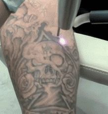 Laser tattoo removal…