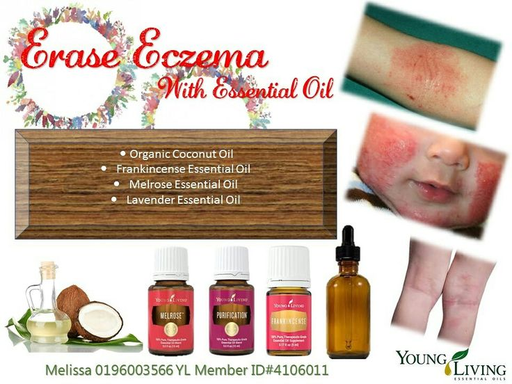 Eczema? Try this natural remedy