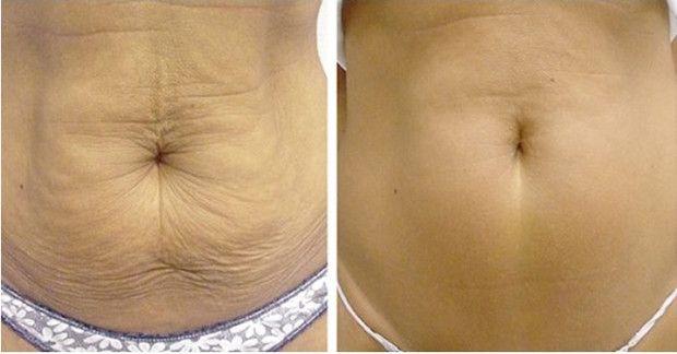 A laza, megereszkedett bőr sok nőnek okoz esztétikai problémát. Szerencsére fájdalmas műtétek és kozmetikai kezelések nélkül is feszesebbé tehető a bőr és elhalványíthatóak a ráncok az alábbi természetes módszerekkel.