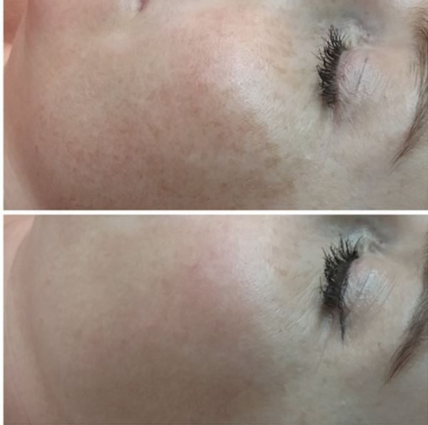 Before & After - Result after just ONE treatment of IPL photorejuvenation for pigmentation.  Client only using her #ultraceauticals SPF 50 and no other treatment Products.  Client will have another 2 sessions to achieve best results. . . . . . #thebeautyclinic #skin #skincare #beauty #cosmetics #beautytherapy #beautytherapist #skintherapist #beforeandafter #before&after #photorejuvenation #iplskinrejuvenation #pigmentation #sundamage#advancedskincare #skinhealth #skintips #clinic…