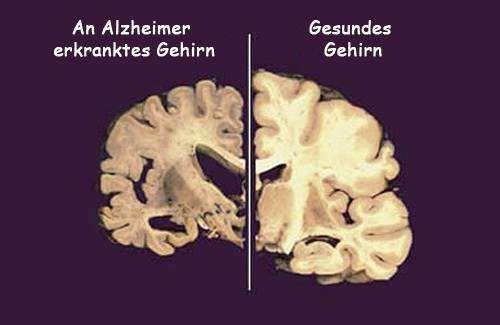 Verursacht Schlafmangel Alzheimer?