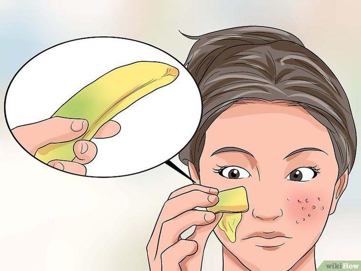 Beseitigen von großen Poren und Hautunreinheiten