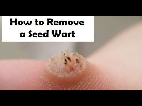 How to remove a seed wart ...If your looking to remove a seed wart make sure you check out: http://addtome.com/wartoff