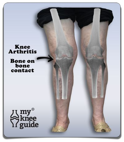 Joanne has severe arthritis on the outside of her knee leading to a knocked knee deformity.