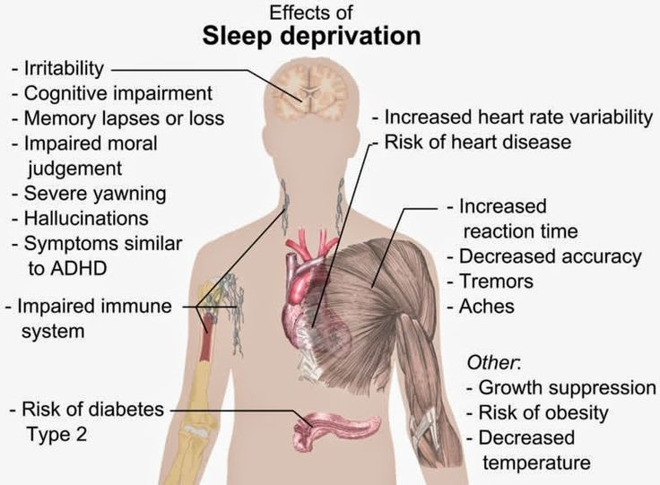 Sleep Deprivation Leads to Symptoms of Schizophrenia | Neuroscience News Research Articles http://neurosciencenews.com/psychiatry-sleep-deprivation-psychosis-1161/