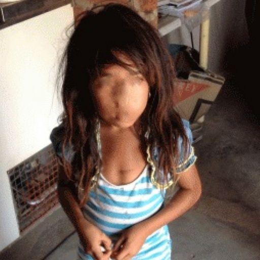 En este momento hay 525 niños de La Guajira que presentan desnutrición aguda, es decir pueden morir en los próximos días.