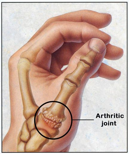 Natural Remedies For Basal Joint Arthritis