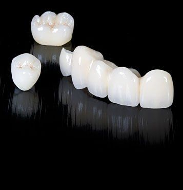 Dental tourism in Romania.9 Advantages of Zirconium in Dentistry - the porcelain crowns on zirconium brackets. www.intermedline.com #cosmeticdentistryRomania #dentaltourismromania #dentistRomania #dentistsRomania #dentaltourismromania #dentalholidaysRomania #dentalvacationsinRomania #dentalromania