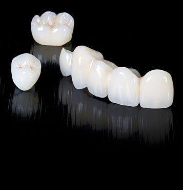 Dental tourism in Romania.9 Advantages of Zirconium in Dentistry - the porcelain crowns on zirconium brackets. www.intermedline.com #cosmeticdentistryRomania #dentaltourismromania #dentistRomania #dentistsRomania #dentaltourismromania #dentalholidaysRomania #dentalvacationsinRomania #dentalromania