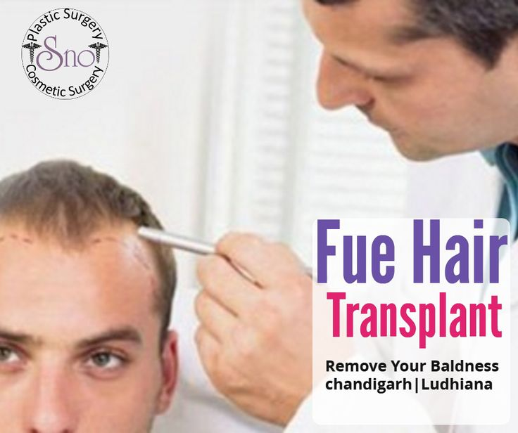Get the better fue hair transplant surgery in Ludhiana