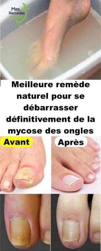 Spécialiste traitement mycoses des ongles | Dr Cante Bordeaux