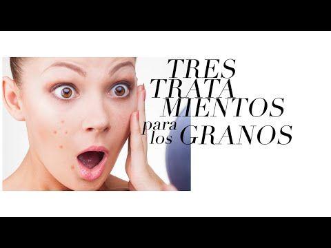 3 REMEDIOS PARA LOS GRANOS DE LA CARA - YouTube