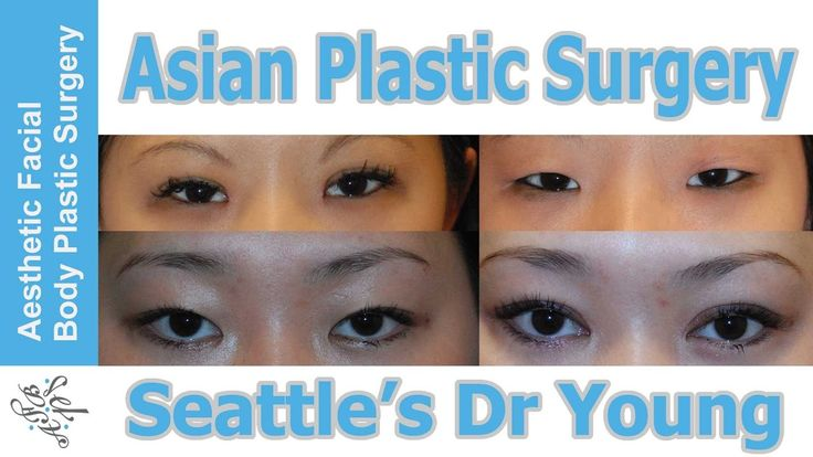 Asian Plastic Surgery Video. Learn about Dr Young's Award Winning Beauty Theory helps is get the best results. #beauty #plasticsurgery #asiandoubleeyelid #asianrhinoplasty