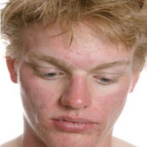 sex-rosacea-facial-swelling-best-treatment-senior