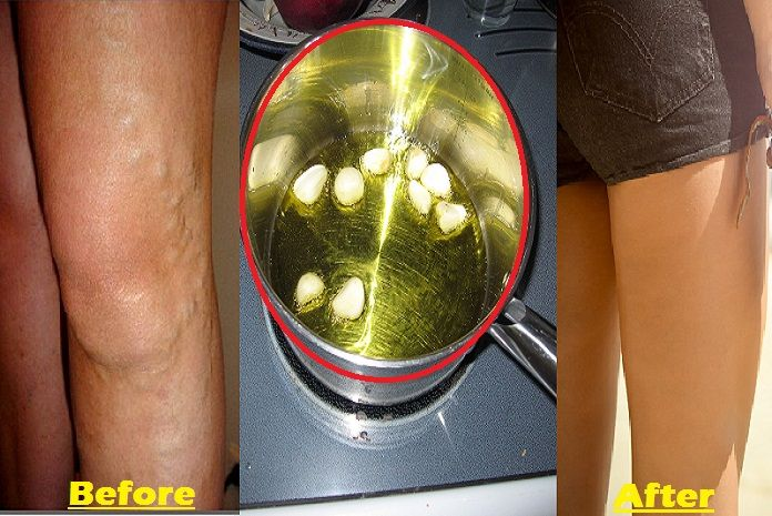 Garlic prevents inflammation, a cause of varicose veins.