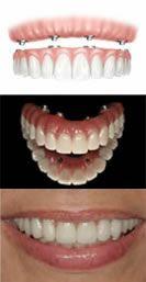 http://www.dentalimplantslondonuk.co.uk/same-day-dental-implants - implant dentist london Have a quick look at our site. https://www.facebook.com/bestfiver/posts/1425189684360669