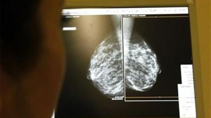 Women who have abnormal mammogram results may be at increased risk for developing breast cancer even when follow-up tests fail to detect tumors, a U.S. study finds.